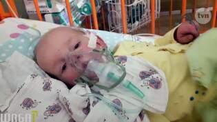 Uwaga Odcinek 5733 Trzyletnia Kasia Potrzebuje Pomocy Oddycha Jak Przez Woreczek Foliowy Z Małą Dziurą